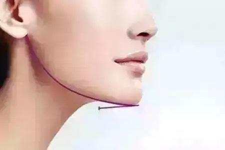 快速消除双下巴方法有哪些