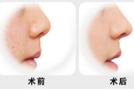 北京鼻梁矫正需要多少钱