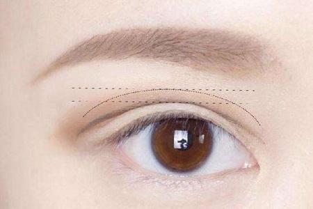 割双眼皮和埋线有什么区别,哪个好