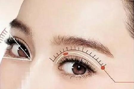 割双眼皮和埋线