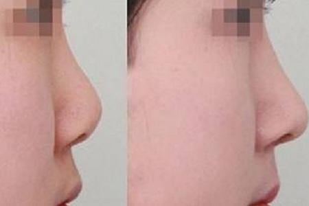 做鼻综合手术恢复时间