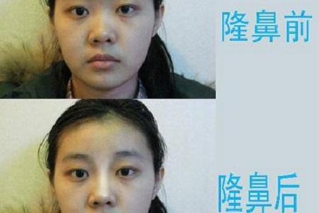 北京鼻子矫正多少钱