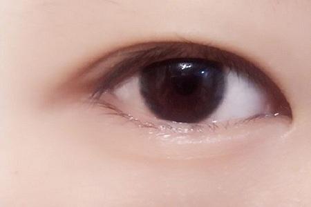 北京做开眼角手术副作用有哪些