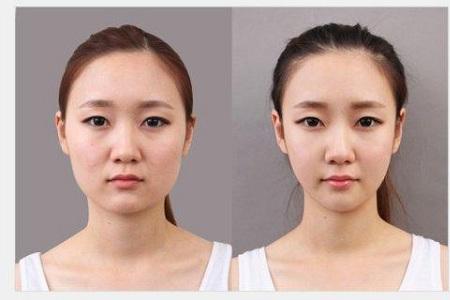 北京打瘦脸针价格要多少钱