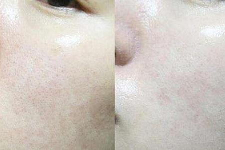 北京做皮肤激光祛痘过程是怎样的