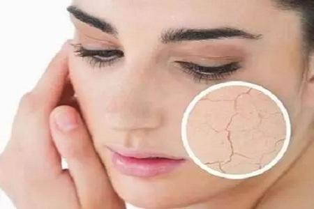 皮肤激光祛痘