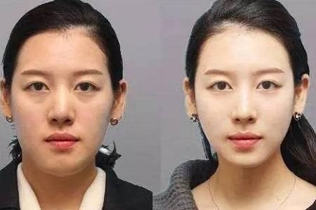 北京进口瘦脸针价格
