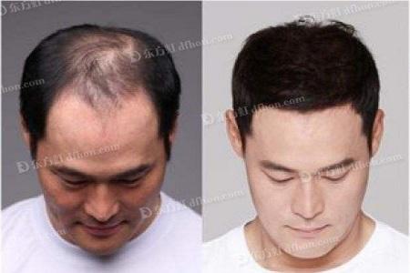 头发稀少该怎么办