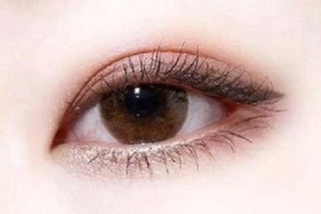北京割双眼皮后遗症有哪些