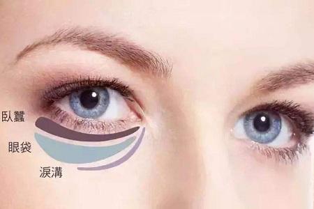 北京美莱做外切眼袋多少钱