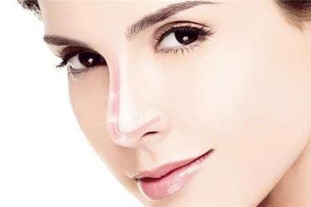 玻尿酸鼻子