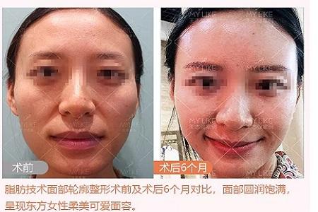 时光初颜--北京美莱脂肪技术面部轮廓塑形