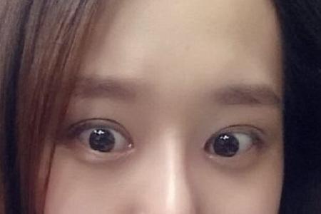 北京美莱手术双眼皮价格