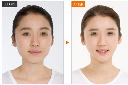 瘦脸针效果好不好