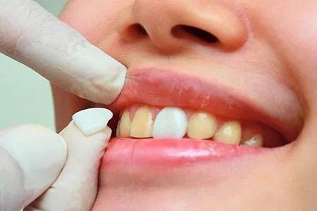 北京美莱洗个牙齿要多少钱