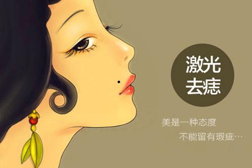 北京美莱激光祛痣手术效果怎么样