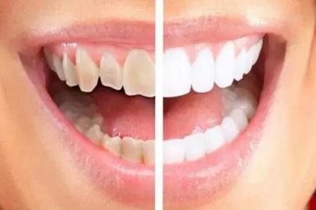 北京美莱做瓷贴面修复牙齿安全不安全