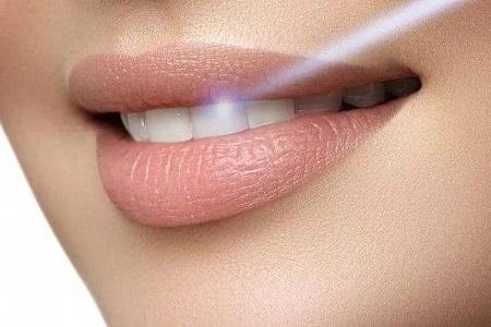 北京美莱做冷光美白牙齿优势有哪些