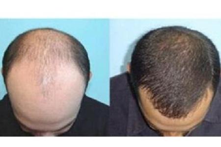 北京美莱值头发多少钱