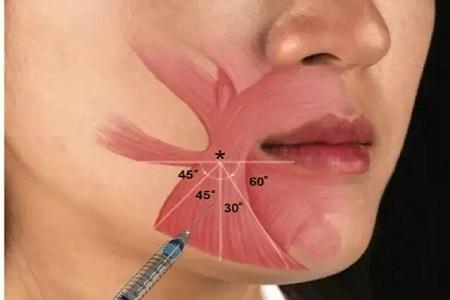 北京美莱胶原蛋白丰嘴唇自然吗