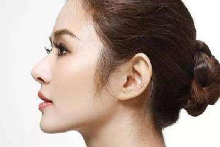 北京美莱做假体隆鼻子要多少钱