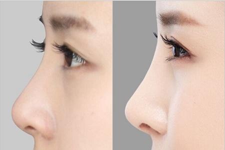 北京做膨体隆鼻术后会红肿吗