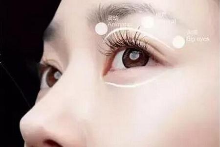 北京美莱做开眼角手术多久恢复