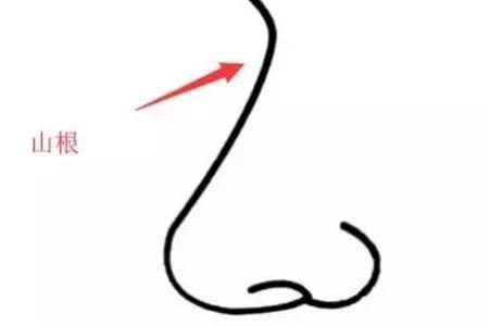 北京美莱做自体脂肪填充隆鼻费用大概是多少