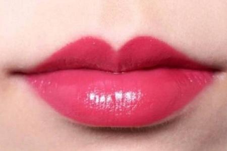 玻尿酸丰唇的方法有哪些
