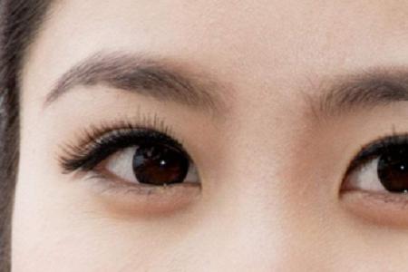 北京美莱做眼袋微创手术多少钱