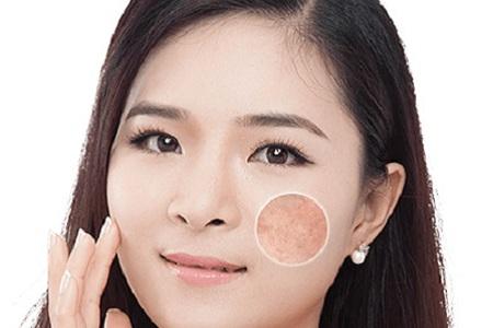北京美莱做激光祛斑手术多少钱