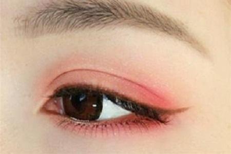 双眼皮失败