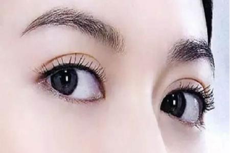北京美莱割双眼皮恢复自然需要多长时间