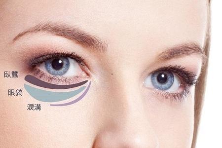 京地区做去眼袋手术能做几次