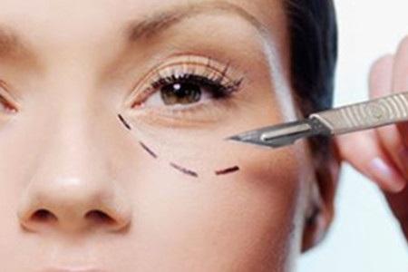 北京美莱做黑眼圈眼袋手术大概需要多少钱
