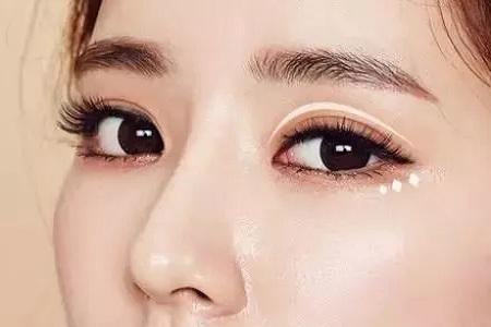 北京做完双眼皮怎么消肿才比较快