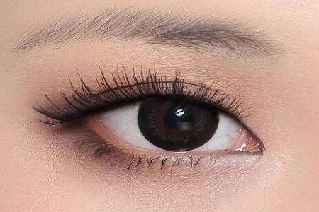 北京做欧式双眼皮常见有哪些优势