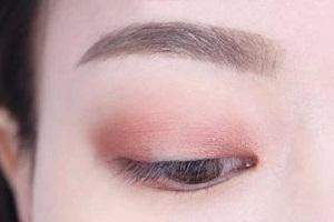 北京美莱做双眼皮收费大概是多少