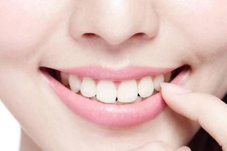 北京牙齿美白手术价格