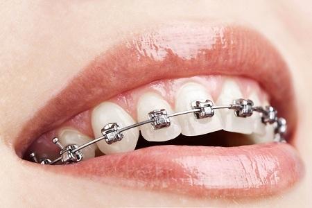 北京矫正牙齿维持多久