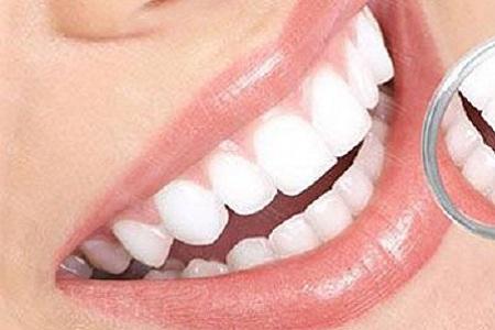 北京牙齿美白价格