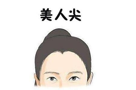 北京美人尖种植费用