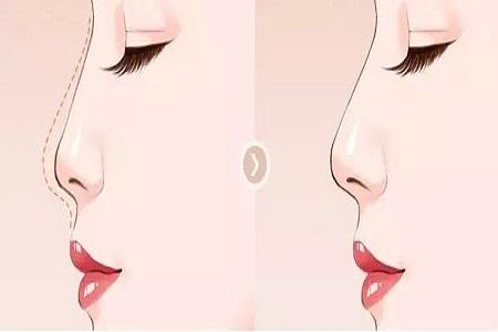 北京鼻部修复手术价格