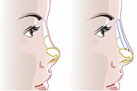 玻尿酸注射隆鼻的价格