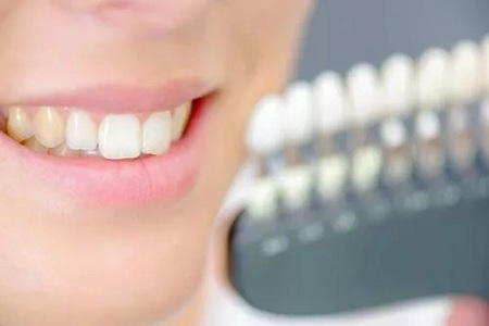 北京补牙齿多少钱一颗