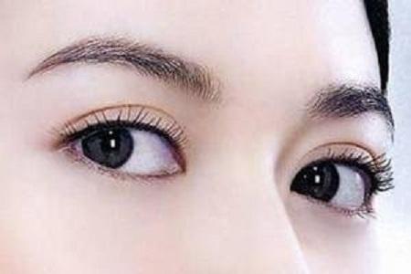 埋线双眼皮能维持几年