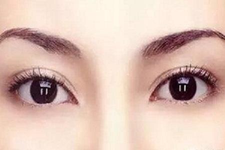 北京美莱割双眼皮多少钱
