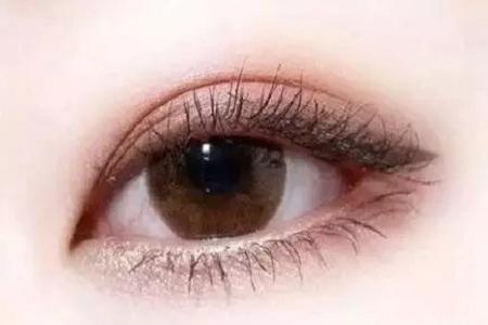 北京割双眼皮手术价格