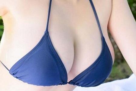 北京做副乳手术需要多少钱