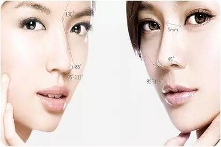 北京玻尿酸隆鼻一般价格